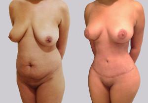Abdominoplastia, Lipoescultura de Espalda y Lipomoldeamiento Glúteo