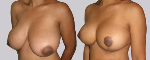 Mamoplastía de Reducción