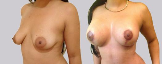 Mastopexia con Implantes